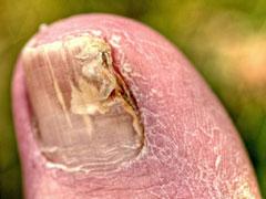 nail fungus cure image