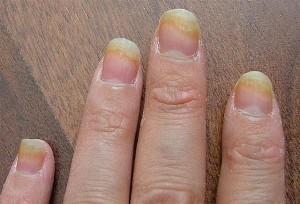 nail fungus image